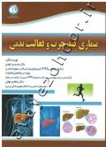 بیماری کبد چرب و فعالیت بدنی